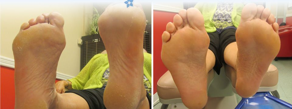 Feet before and after treatment at the Centre